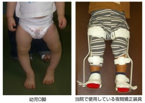 infant_bowlegs_2